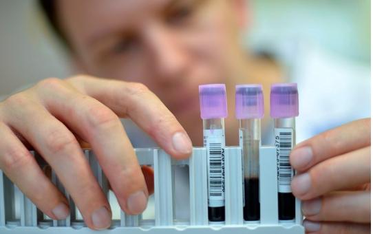Shkencëtaret provojnë testin e ri për zbulimin e kancerit, do shpëtonte mijëra jetë!