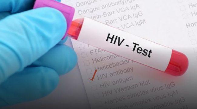 Shkencëtarët në prag të gjetjes së kurës për HIV