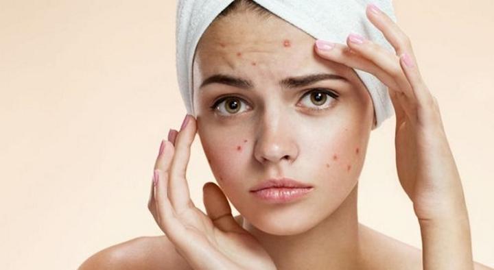 Ja si t'i dallojmë sëmundjet e lëkurës