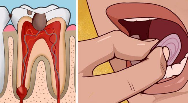 Ja si mund ta qetësoni dhimbjen e dhëmbit brenda 5 minutave