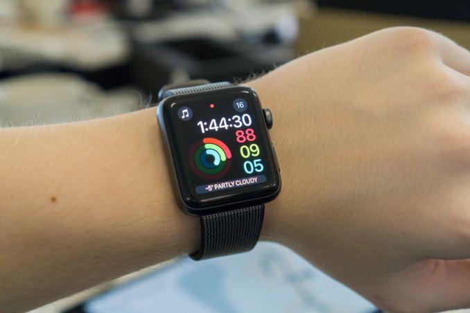 'Apple Watch'-ët, të rrezikshëm për shëndetin