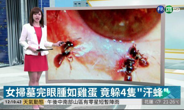 Shkoi në spital për infeksion në sy, mjekët ia gjetën katër bletë të gjalla
