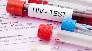 HIV-AIDS, përhapjes së virusit mund t'i ketë ardhur fundi
