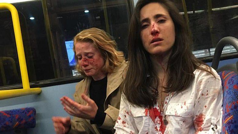 Refuzuan të putheshin, një çift lesbikesh përgjaken nga një grup djemsh – në një autobus në Londër