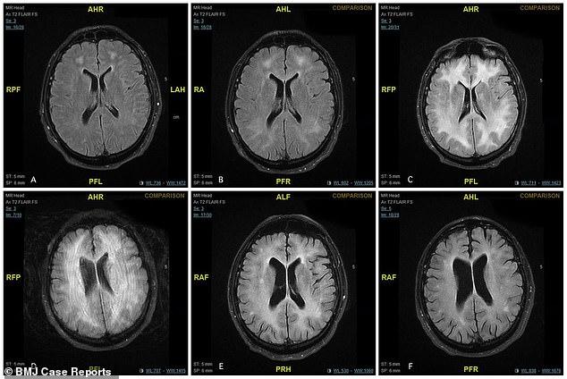 """Skanimet tregojnë se si ua """"ha"""" trurin kokaina përdoruesve"""
