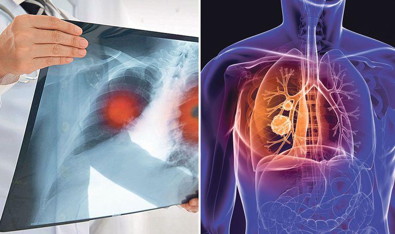 Aftësia magjike e shërimit të mushkërive tek ish-duhanpirësit
