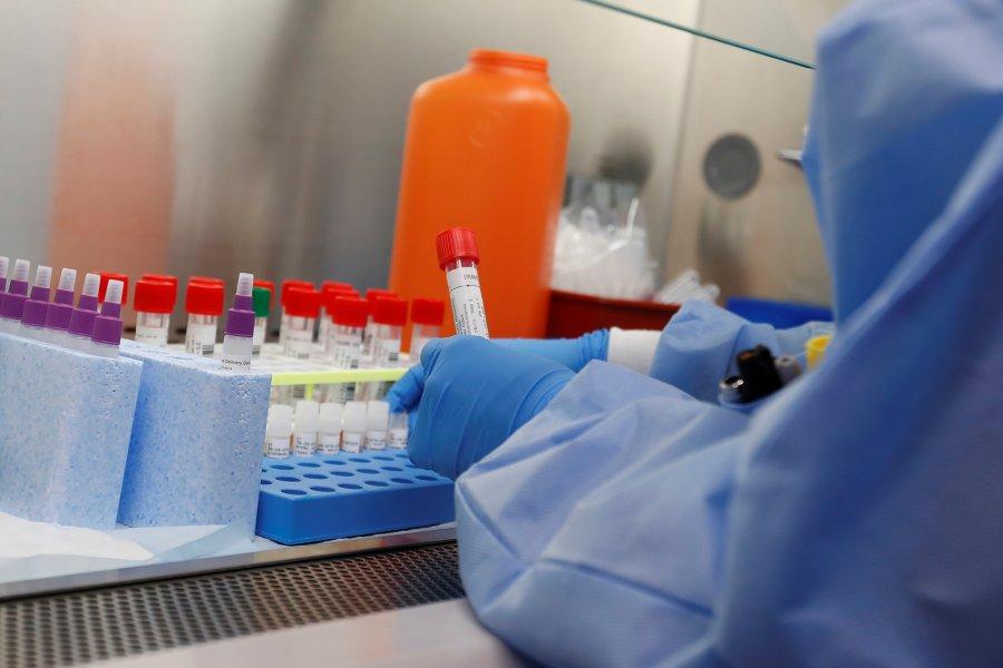 Nënshkruhet vendimi për licensimin e laboratorëve privatë për testime
