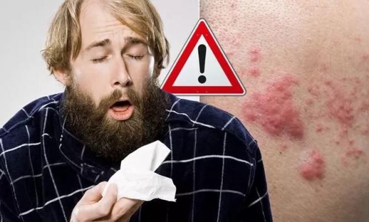 'Kujdes nëse keni skuqje', shkencëtarët zbulojnë simptoma të reja të kronavirusit në lëkurë