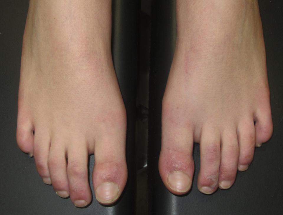 Si zbulohet Covid-19 nga shenjat në lëkurë dhe gishtat e këmbës!