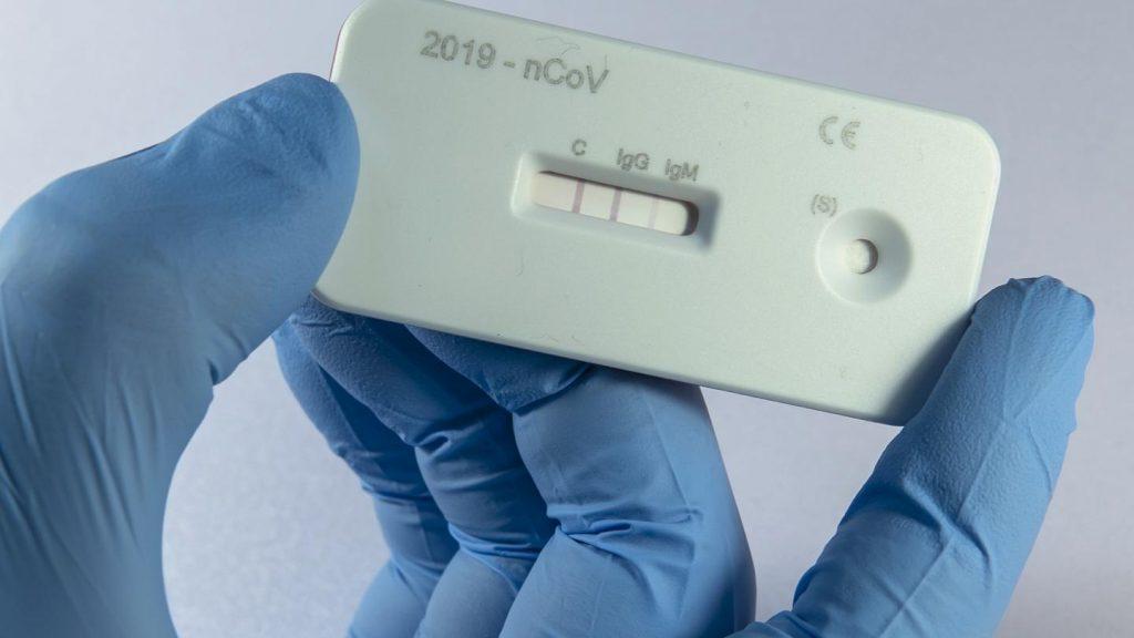 Si manifestohet koronavirusi tek personat që infektohen për së dyti?