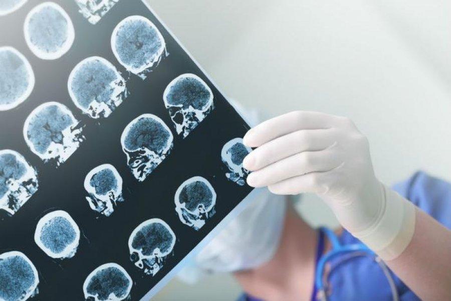 Dëmtimet e rënda në tru, të mundshme edhe në rastet e simptomave të buta të koronavirusit