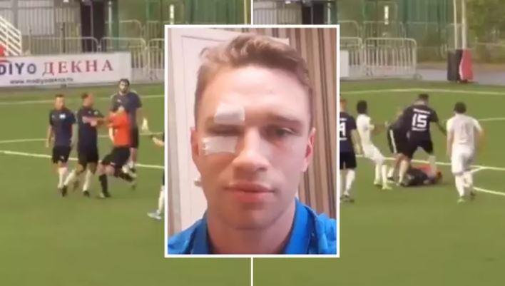 Nuk i akordoi penallti, ish-futbollisti i njohur rus e bën për 'spital' gjyqtarin e ndeshjes