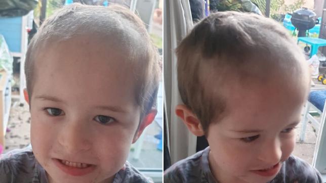 Pesëvjeçari 'trondit' prindërit pasi rruajti kokën pas shpinës së tyre