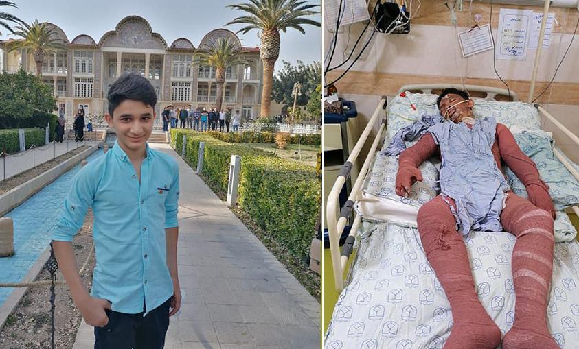 15-vjeçari hero që shpëtoi dy gra nga flakët, ndërron jetë nga djegiet